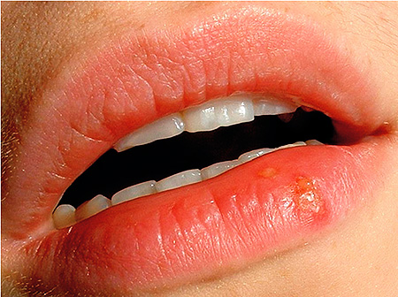 герпес на нижней губе