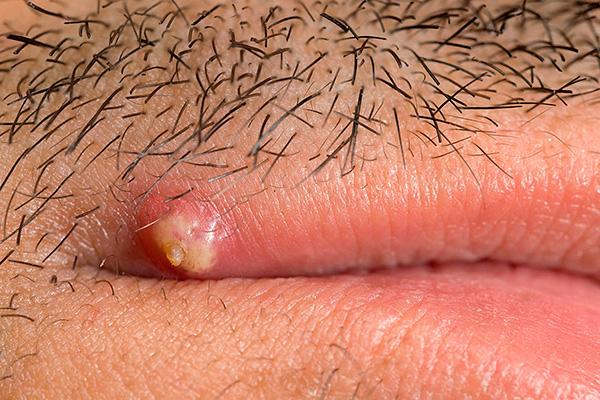 Adult herpes