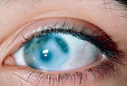 Помутнение роговицы глаза при офтальмогерпесе