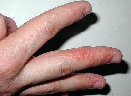 герпес на руке фото лечение