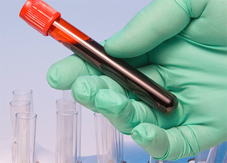 При диагностике зачастую прибегают к лабораторным методам анализа