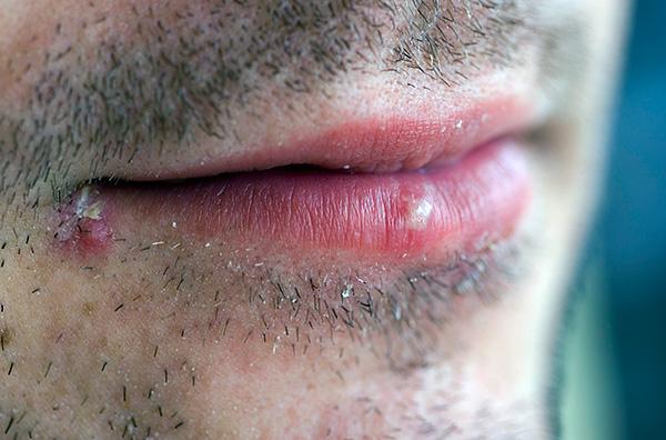 При лечении обычной простуды на губах применение таблеток и, тем более, инъекций не оправдано,