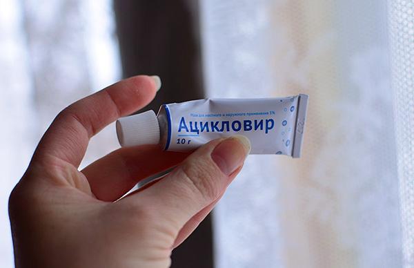 Противогерпетические мази наиболее популярны при лечении простуды на губах.