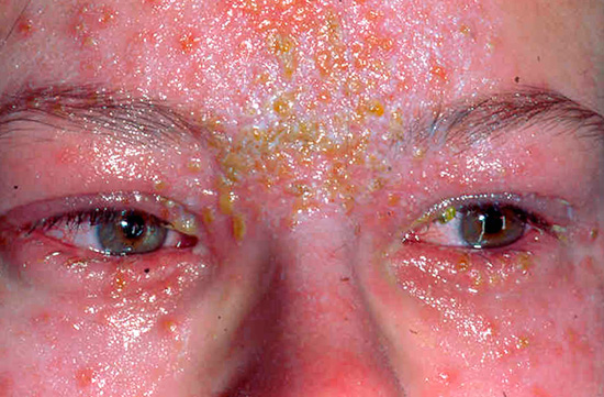 При проявлениях болезни на лице могут серьезно поражаться глаза...
